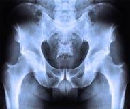 Raggio x della spina dorsale e del bacino Immagini Stock Libere da Diritti
