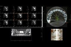 Raio X 3D dental dos dentes imagem de stock