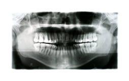 Raio X da boca humana com enchimentos foto de stock