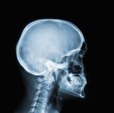 Raio X da cabeça Imagem de Stock