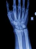 Raio X da mão Fotografia de Stock