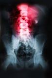 Raio X da pelve e da coluna espinal imagem de stock