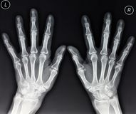 Raio X das mãos Fotografia de Stock