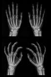 Raio X de ambas as mãos imagens de stock