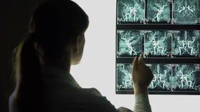 Raio X de exame dos vasos sanguíneos do neurocirurgião, fazendo o diagnóstico, tratamento paciente filme