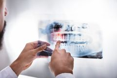 Raio X de Examining Teeth do dentista imagem de stock