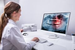 Raio X de Looking At Teeth do dentista no computador imagens de stock