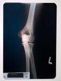 Raio X de um joelho Imagem de Stock Royalty Free
