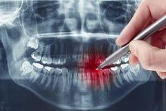 Raio X dental imagens de stock