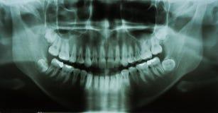 Raio X dental (raio X) imagens de stock