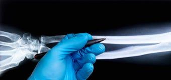 Raio X do braço humano com mão do doutor na luva fotografia de stock royalty free