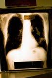 Raio X do câncer pulmonar Imagens de Stock Royalty Free