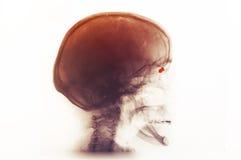 Raio X do crânio de uma mulher dos anos de idade 73 Imagem de Stock Royalty Free