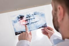 Raio X do doutor Holding Teeth fotos de stock