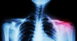 Raio X do filme ambo clavícula AP (vista dianteira): mostre a fratura a clavícula esquerda longe do ponto de origem Fotos de Stock