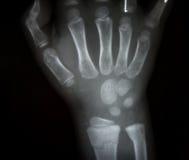 Raio X do filme ambo mão AP: mostre as mãos humanas normais do ` s Foto de Stock