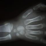Raio X do filme ambo mão AP: mostre as mãos humanas normais do ` s Fotografia de Stock Royalty Free