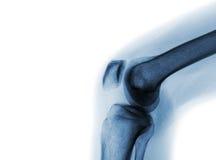 Raio X do filme da articulação do joelho normal imagem de stock