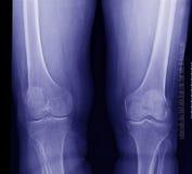Raio X do joelho imagens de stock