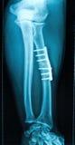 Raio X do osso fraturado do pé Foto de Stock Royalty Free