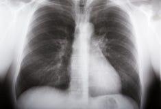 Raio X dos pulmões fotografia de stock