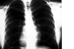 Raio X dos pulmões imagem de stock royalty free