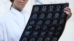 Raio X fêmea do cérebro da terra arrendada do neurologista com resultado negativo do exame, doença vídeos de arquivo