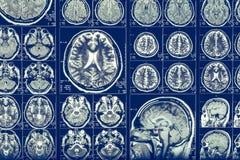 Raio X Mri da varredura de cérebro ou ressonância magnética da cabeça humana, conceito da neurologia fotos de stock