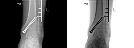 Raio X quebrado do salto fixado com parafusos e placa, dor do pé no escritório do doutor Fotografia de Stock