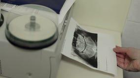 Raio X da cópia da foto vídeos de arquivo