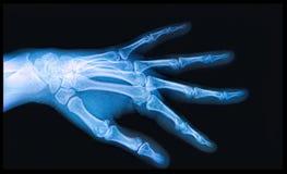Raio X da mão e dos dedos Fotografia de Stock