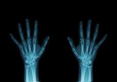 Raio X das mãos Fotografia de Stock Royalty Free