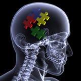 Raio X de esqueleto - confundindo 2 Fotos de Stock