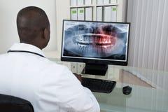 Raio X de Looking At Teeth do dentista no computador Imagem de Stock