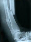 Raio X de um pé quebrado Imagem de Stock Royalty Free