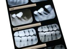 Raio X dental Fotos de Stock Royalty Free