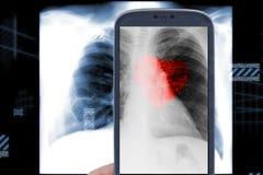 Raio X do coração de Smartphone Fotos de Stock Royalty Free
