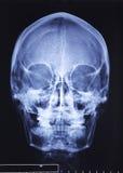 Raio X do crânio Foto de Stock