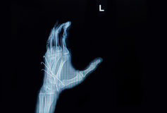Raio X do filme da fratura da mão: mostre a fratura o inse do osso metacarpal Foto de Stock