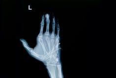 Raio X do filme da fratura da mão: mostre a fratura o osso metacarpal Imagem de Stock