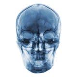 Raio X do filme do crânio humano normal Front View Imagem de Stock