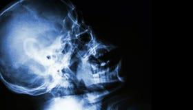 Raio X do filme do crânio humano normal vista lateral área vazia no lado direito Foto de Stock