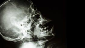 Raio X do filme do crânio humano normal vista lateral área vazia no lado direito Fotos de Stock