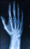 Raio X dos dedos da mão Fotografia de Stock