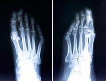 Raio X dos dedos do pé Radiografia com dedos do pé deformados Valg de Hallux Fotos de Stock Royalty Free
