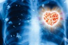 Raio X e coração Fotografia de Stock Royalty Free