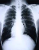 Raio X/pulmão Fotografia de Stock Royalty Free
