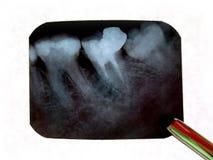 Raios X dos dentes Fotografia de Stock Royalty Free