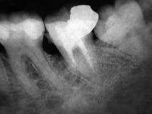 Raios X dos dentes macro Foto de Stock