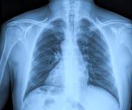Raios X médicos Imagem de Stock Royalty Free